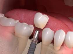 Implant-borne_single-tooth_treatment_03