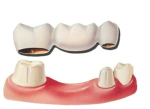 dental-bridge-diag-300x218